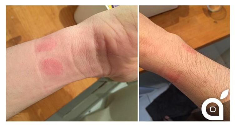 iritatie-piele-apple-watch